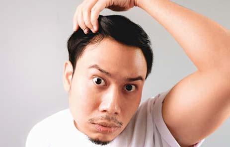 [News] 醋、何首烏、維生素B6……哪種防脫髮法子更靠譜?