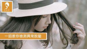 201711 NCS Post Images V1 300x169 - 一招教你檢測異常脫髮