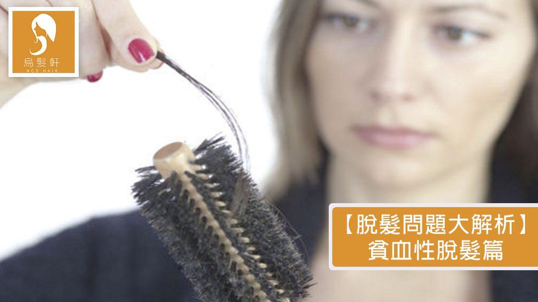 【脫髮問題大解析】貧血性脫髮篇