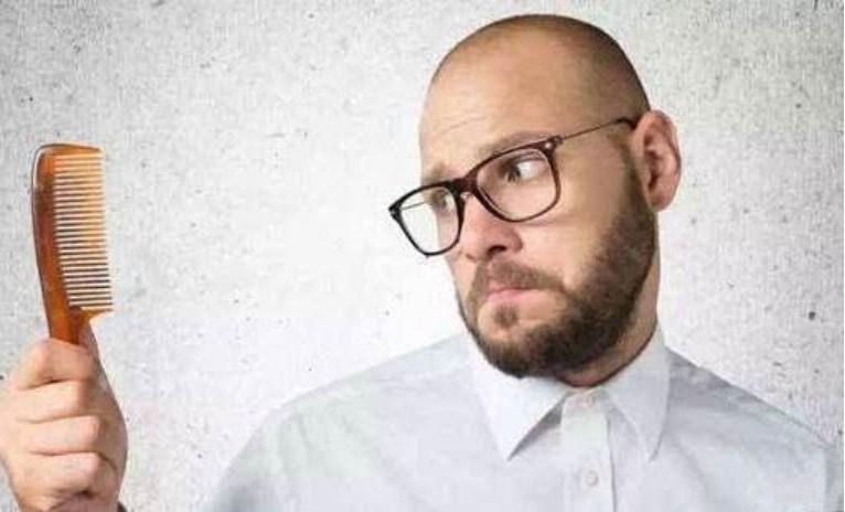 [News] 也會頭禿,防脫髮有5個誤區