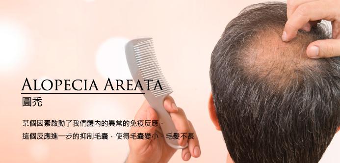 [News]  抗皮膚炎藥物,被意外發現竟可刺激頭髮生長