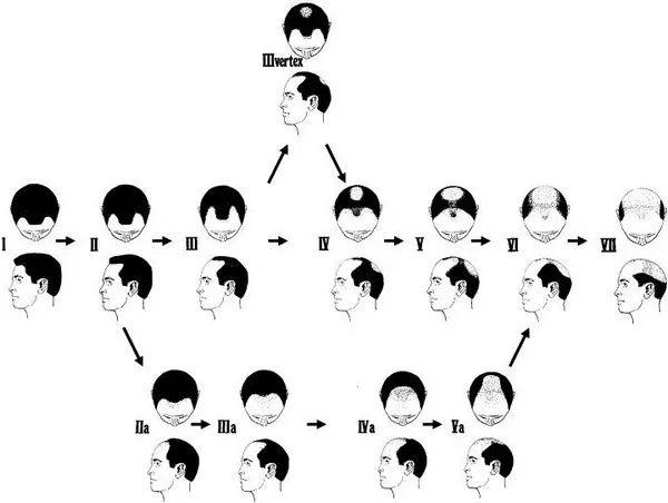 [News] 植髪原理其實是拆東牆補西牆