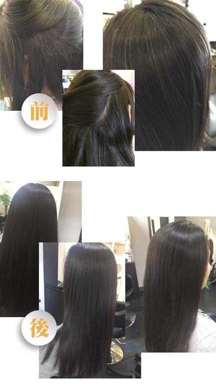 grey hair hsy 2 - 白頭髮療程