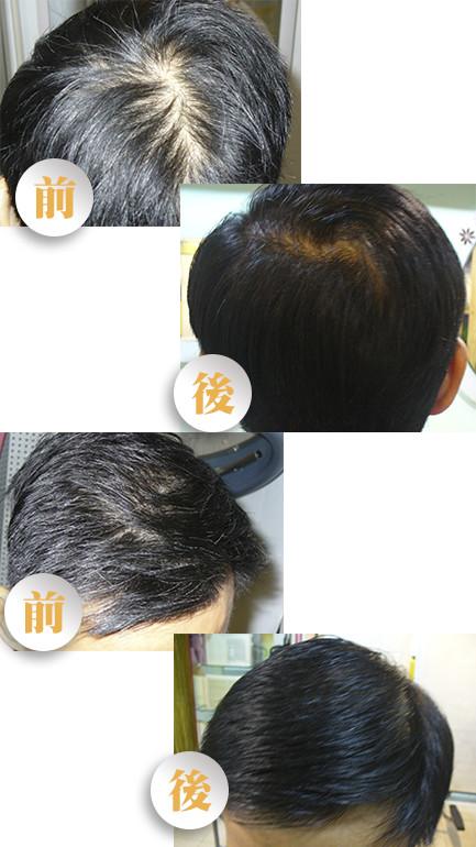 grey hair ht - 白頭髮療程