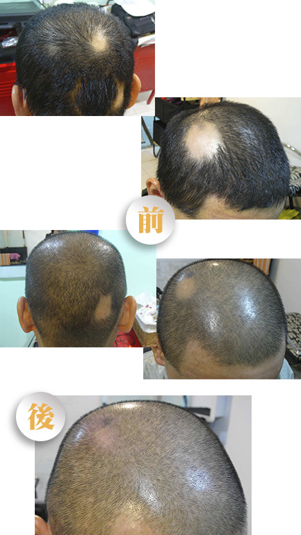hair growth eh - 生髮療程
