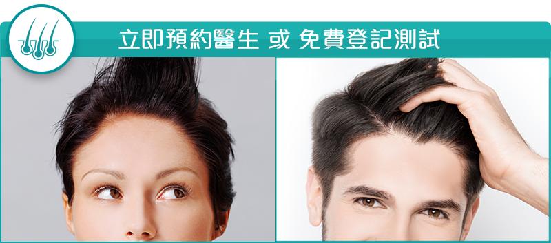 [News] 背負脫髮命運的主要還是男性