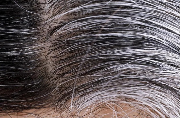 hair loss white hair grey hair dark hair hair treatment_hong kong_ncs hair hong kong
