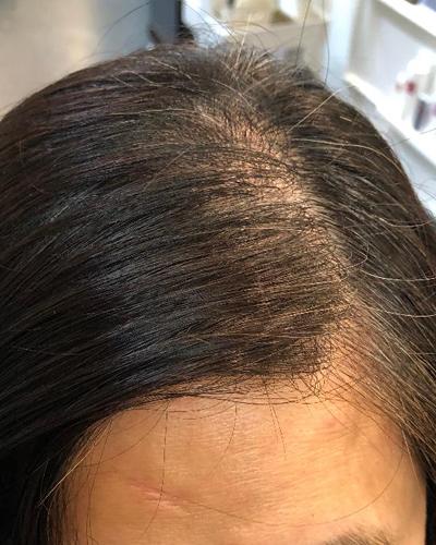 SKT before white hair top