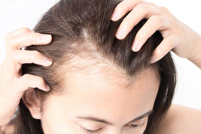 女性植髮是怎麼一回事?