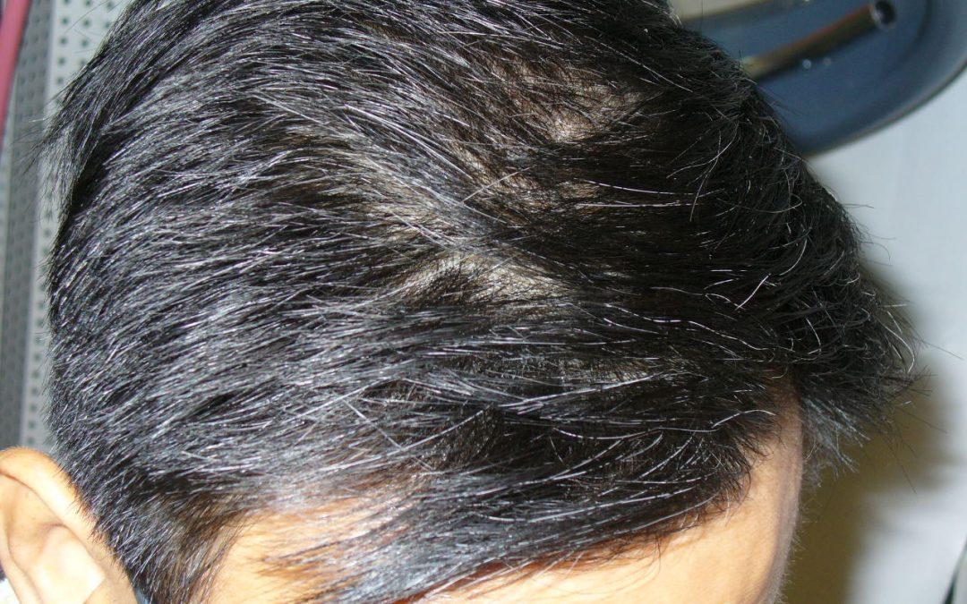 [NEWS]年紀輕輕就有白頭髮點算好?常吃這4物,或能白髮變黑髮
