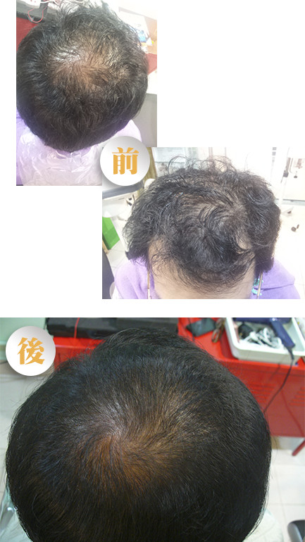 hair growth cl - 生髮療程