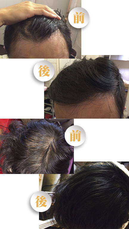 hair growth yn - 生发疗程