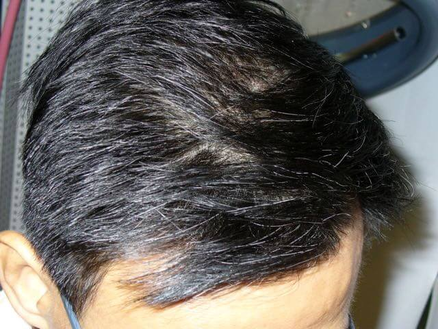 white-hair-t-before-a